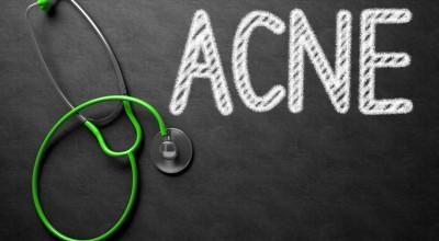 FAQ acne