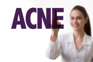 FAQ acne 2