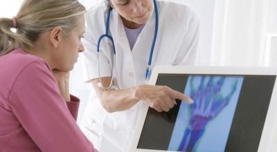che cosa è l'artrosi